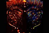 Ultrasound Microscopy Helps Image Tiny  Blood Vessels