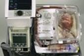 First transplant of 'dead' heart