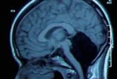 The Case of the Missing Cerebellum