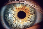 Biometrics Researcher Asks: Is That Eyeball Dead or Alive?