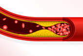 Scientists Find Source of COVID Clots