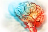 Neurodiversity: What Is It?