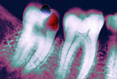 Pandemic Stress Has More People Grinding Their Teeth