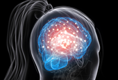 Women More Prone to Concussion's Long-Term Harms