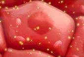 Popular Diabetes Drug May Contain a Carcinogen