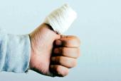 Blocking 1 healing gene cuts down on scarring
